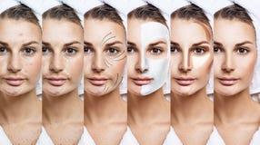 De vrouw verbetert stap voor stap haar huidvoorwaarde Stock Fotografie