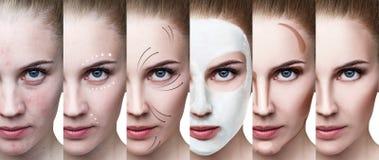 De vrouw verbetert stap voor stap haar huidvoorwaarde Royalty-vrije Stock Afbeelding