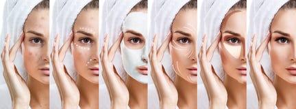 De vrouw verbetert stap voor stap haar huidvoorwaarde Royalty-vrije Stock Afbeeldingen