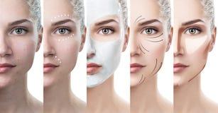 De vrouw verbetert stap voor stap haar huidvoorwaarde Stock Afbeeldingen