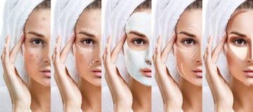 De vrouw verbetert stap voor stap haar huidvoorwaarde Royalty-vrije Stock Foto