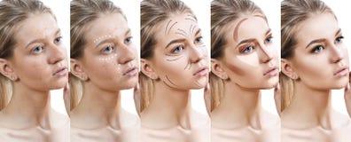 De vrouw verbetert stap voor stap haar huidvoorwaarde Stock Foto's