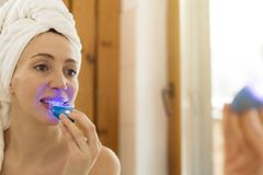 De vrouw wit tanden met speciale tandpasta en LEIDENE lichte a stock foto