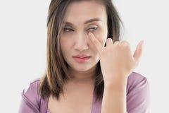 De vrouw wrijft haar oog met een vinger stock foto