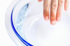 De vrouw zet haar gebrande hand in koud water royalty-vrije stock foto's