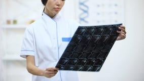 De vrouwelijke arts die knie gezamenlijk x-ray, goed onderzoek bekijken vloeit, geneeskunde voort stock video