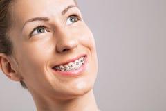 De Vrouwelijke Glimlach van steunentanden Stock Foto's