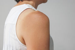 De vrouwelijke huid van de zonnebrandschouder Royalty-vrije Stock Afbeeldingen