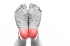 De vrouwelijke voet met pedicure en de armen over--drogen huid op de hielen van Royalty-vrije Stock Afbeelding