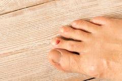 De wond op zijn been Een bloedige blaar op zijn vinger Sluit omhoog Op een houten achtergrond stock fotografie