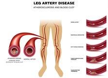 De ziekte van de beenslagader, Atherosclerose Stock Foto