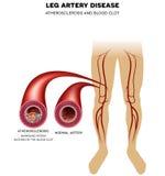 De ziekte van de beenslagader, Atherosclerose stock illustratie