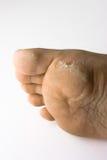 De ziekte van de huid Stock Foto's