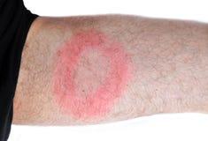 De ziekte van Lyme, bacteriële besmetting Royalty-vrije Stock Fotografie
