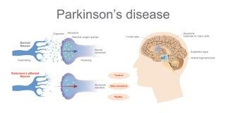 De ziekte van Parkinson ` s vector illustratie