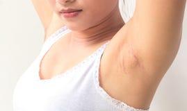 De zwarte oksel van het vrouwenprobleem voor huidzorg en schoonheidsconcept Stock Fotografie