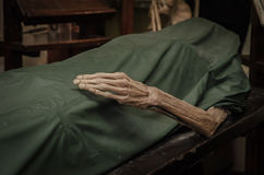 The dead body. Focus on hand decay Royalty Free Stock Photos