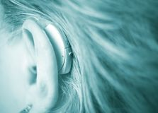 Deaf woman with hearing aid. Deaf lady with modern technology digital hearing aid in her ear stock photography