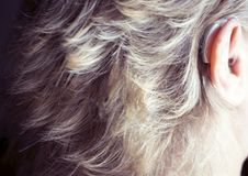 Deaf woman with hearing aid royalty free stock photography