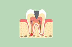 Decay tooth anatomy structure including the bone and gum Royalty Free Stock Image
