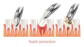 Decay Tooth Extraction Procedure. 3d Vector royalty free illustration