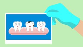 Decay tooth step by step. Dentist,  dental,  vector Royalty Free Stock Photos