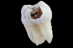 Decayed tooth Stock Photo
