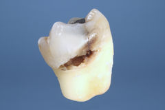 Decayed Tooth Stock Images