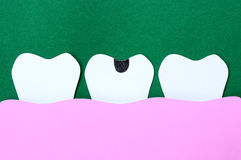 Decayed tooth Royalty Free Stock Image