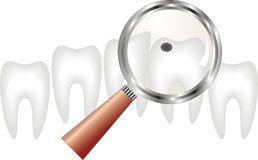 Decayed tooth under  magnifying glass ,  dentistry Royalty Free Stock Image