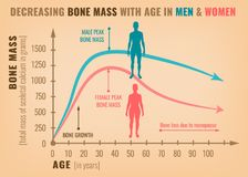 Decreasing bone mass. With age in men and women. Detailed infographic in beige, pink and blue colors. Vector illustration. Healthcare and medicine concept royalty free illustration