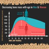 Decreasing bone mass. With age in men and women. Detailed infographic in beige, pink and blue colors. Vector illustration on a dark grey background with bone stock illustration