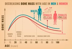 Decreasing bone mass. With age in men and women. Detailed infographic in beige, pink and blue colors. Vector illustration. Healthcare and medicine concept vector illustration