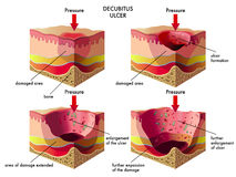 Decubitus ulcer. Medical illustration of the effects of the decubitus ulcer Stock Photography