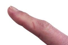 Dedo con el corte, riesgo de infección, aislado fotografía de archivo