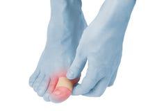 Dedo curativo adhesivo del yeso a pie. Imágenes de archivo libres de regalías