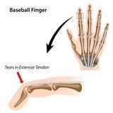 Dedo del béisbol stock de ilustración