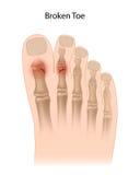 Dedo do pé quebrado Foto de Stock