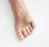 Dedo do pé pequeno quebrado Fotos de Stock Royalty Free