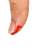 Dedo do polegar do sangramento Fotos de Stock Royalty Free