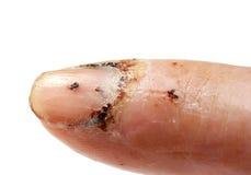 Dedo ferido Fotografia de Stock Royalty Free