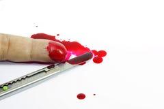 Dedo ferido Fotografia de Stock
