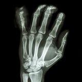 Dedo meñique distal del pharange de la fractura foto de archivo