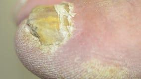 Dedos del pie de los hongos almacen de metraje de vídeo
