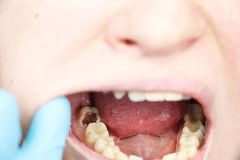 Deep caries, open canals, cleaning canals. Patient at stomatolon on admission, periodontitis treatment. Patient at stomatolon on admission, periodontitis stock photos
