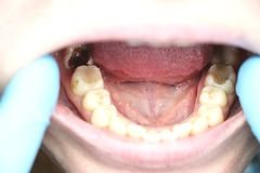 Deep caries, open canals, cleaning canals. Patient at stomatolon on admission, periodontitis treatment. Patient at stomatolon on admission, periodontitis stock photography