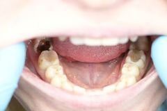 Deep caries, open canals, cleaning canals. Patient at stomatolon on admission, periodontitis treatment. Patient at stomatolon on admission, periodontitis royalty free stock photos