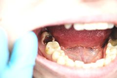 Deep caries, open canals, cleaning canals. Patient at stomatolon on admission, periodontitis treatment stock photo