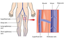 Deep and superficial veins of the leg. Leg veins, with detail of deep and superficial veins in the leg muscle, connected by a perforator vein. Created in Adobe Royalty Free Stock Photos