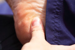 Deep tissue massage heel. Deep tissue massage to the heel of the foot Royalty Free Stock Images